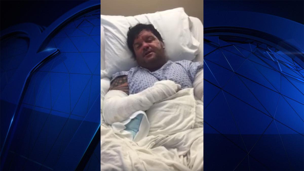 Florida man survives alligator attack while walking dog