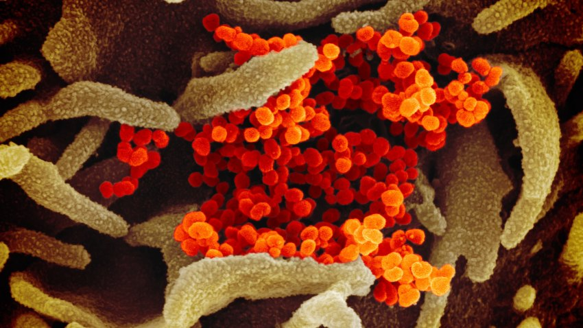 This scanning electron microscope image shows SARS-CoV-2 (orange)—also known as 2019-nCoV, the virus that causes COVID-19