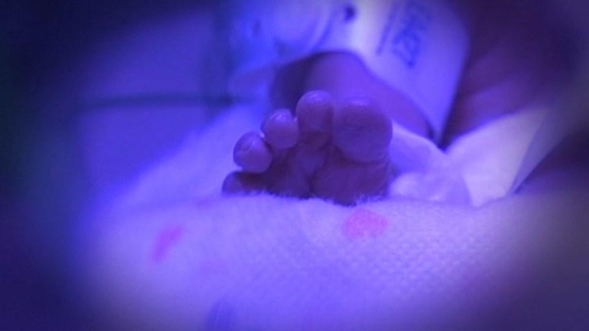 Generic Premature Baby Generic
