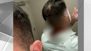 Cuts on back of man's head