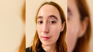 Sam Fox left the hospital Thursday night with 10 stitches after a man sucker-punched her walking down a Manhattan street