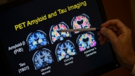 New Evidence Suggests Viruses May Play Role in Alzheimer's