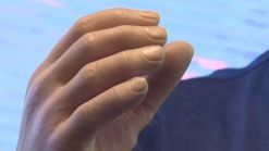 New Prosthetic Arm Offers Life-Like Touch