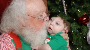 Santa Meets Baby Born With Partial Skull