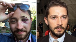 'You Look Like Shia LaBeouf,' Says Attacker in NYC Sucker-Punch