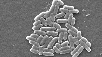 E. coli Concerns Prompt Beef Recall in NY, NJ