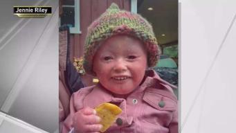 Child With Rare Genetic Illness Cyberbullied