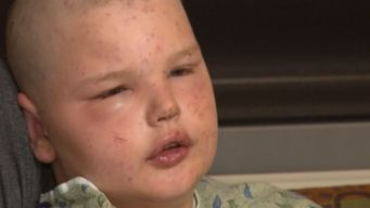 Hundreds of Bees Attack 11-Year-Old Boy