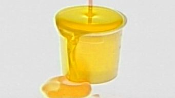 Day Care Worker Makes Kid Pee in Cup to Get Clean Urine: PD