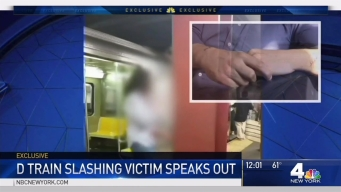 Man Slashed on D Train Speaks Out About Attack