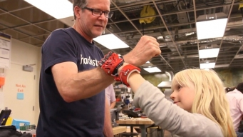 Calif. Engineers Make Prosthetic Hand for 8-Year-Old Girl
