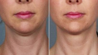 "Could New ""Fat-Melting"" Injection End Double Chins?"