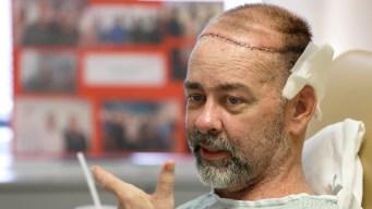 Doctors Perform World's First Skull-Scalp Transplant