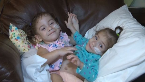 [NATL] Conjoined Twin Girls Separated by 17 Hour Surgery
