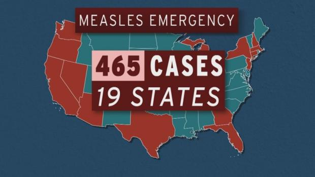[NATL] CDC: 465 Measles Cases Reported in U.S. for 2019