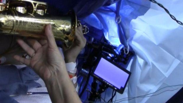 Music Teacher Plays Saxophone During Brain Surgery