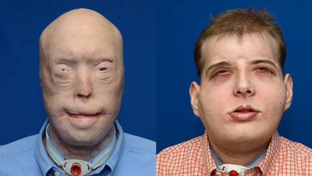 [NY] NYC Hospital Completes Most Extensive Face Transplant Ever on Burned Mississippi Firefighter