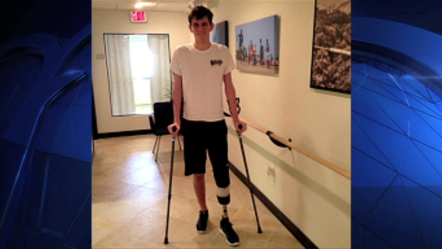 [NY] Teen Walks 2 Months After Losing Foot in Central Park Explosion