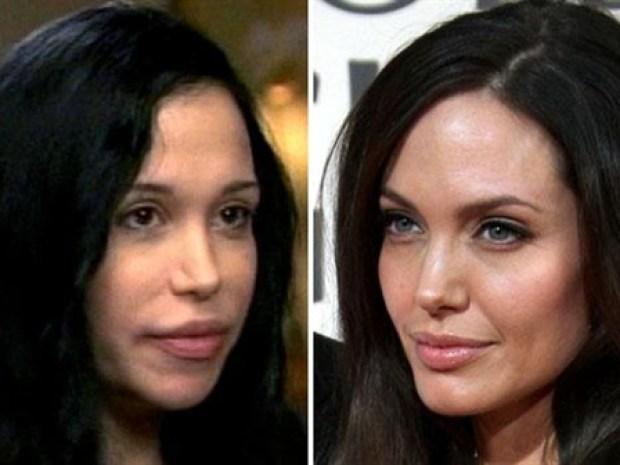 [NBCAH] Octo-Mom Is Just Like Angelina Jolie