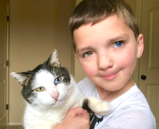 Boy With Cleft Lip, Different Color Eyes Meets Equally Rare Kitten