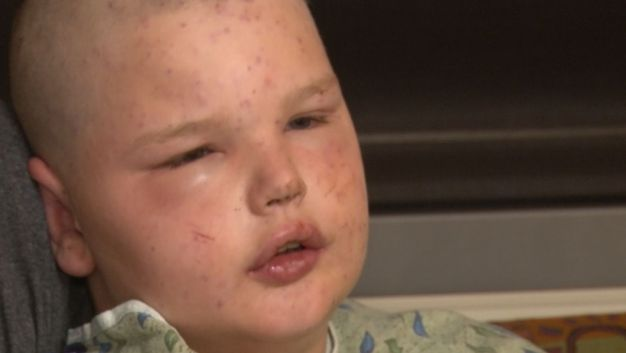 'It Felt Like 400 Bullets': 11-Year-Old Describes Attack by Hundreds of Bees