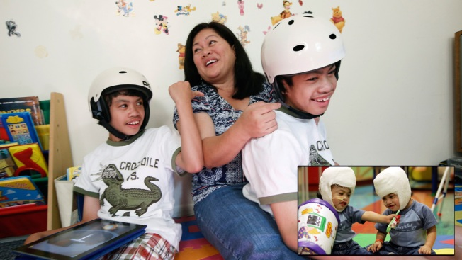 10 Years Later, Separate Lives for Once-Conjoined Twins