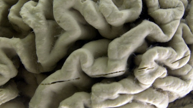 Avoiding 9 Key Risks Could Potentially Stave Off Dementia: Panel