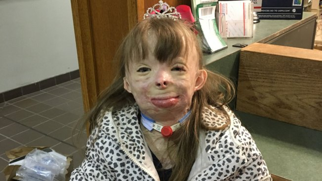 New York Girl, 8, Badly Burned in 2013 Arson Fire Gets Trip to Disney World