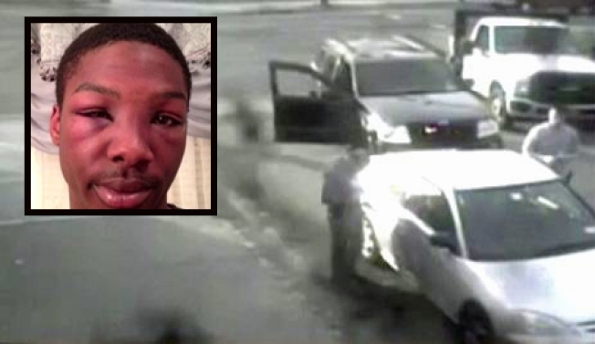 Long Island Man's Lawsuit Says Cops Beat Him 'Relentlessly'