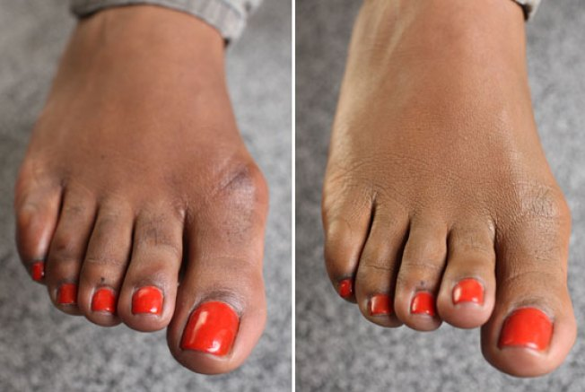 Ugly Feet? Try Concealer