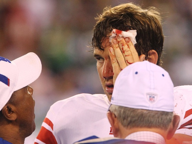 The Bloody Truth Of the Giants Preseason Debut