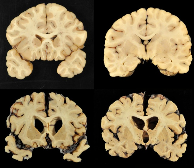 CTE FAQ: How Repeated Head Blows Affect the Brain