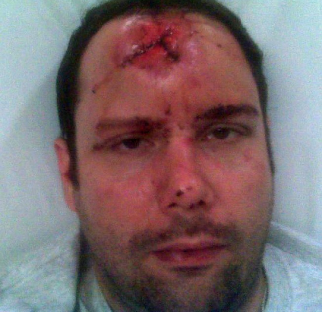 Left to Die: Gay Man Bashed on Pride Weekend