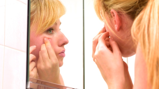 FDA Warns of Allergic Reactions With Acne Products