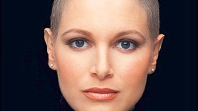 Ex-Miss Venezuela Dies of Breast Cancer at Age 28
