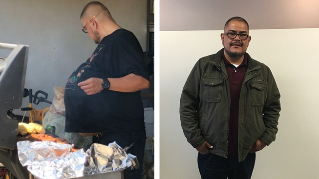 Photos: Downey Man's 'Beer Belly' Turns Out to Be 77-Pound Tumor