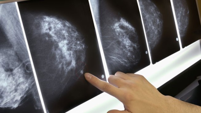 Light Drinking Linked to Slight Breast Cancer Risk