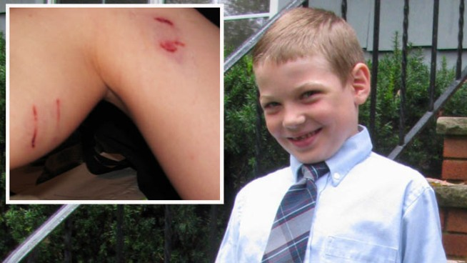 A 7-year-old boy fought off a raccoon that attacked him in his New Jersey backyard just weeks after a dog was bitten by a rabid raccoon in the same town, and authorities are concerned about more sick animals on the loose. Lori Bordonaro reports.