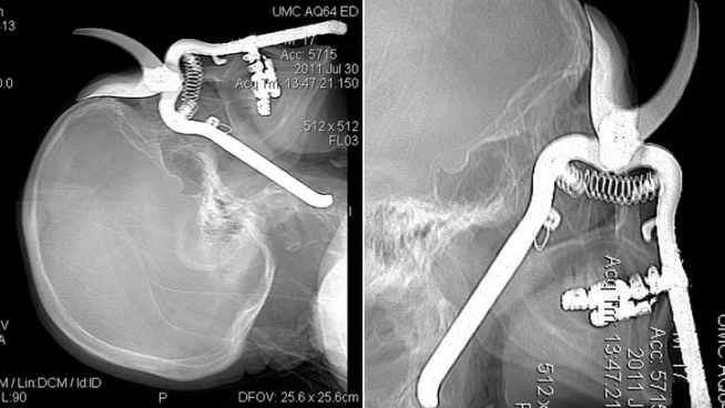 X-ray Shock: Gardener, 86, to Recover After Being Impaled by Shears
