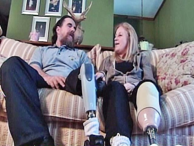Each lost a leg when their Harley was hit by a distracted driver.