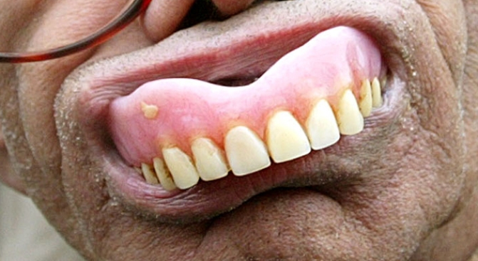 Man Demands Dentures During Alleged Stick Up