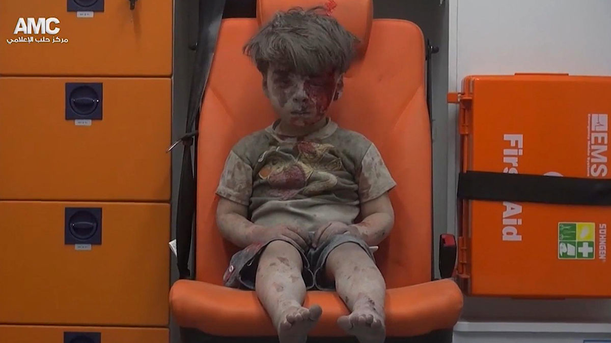 In this frame grab taken from video provided by the Syrian anti-government activist group Aleppo Media Center (AMC), a child sits in an ambulance after being pulled out or a building hit by an airstirke, in Aleppo, Syria, Wednesday, Aug. 17, 2016. The photo was seen around the world. The group in the new documentary helped save Omran Daqneesh.